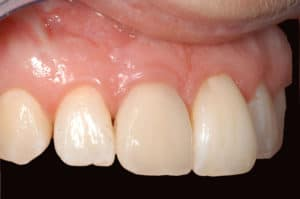 close up look of teeth and gums