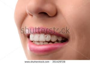close up of female smiling with a mouth guard fitted at a dentist surgery