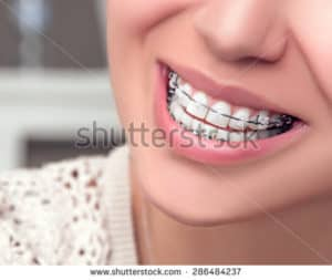 close up of a mouth wearing braces