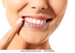 Woman smiling pointing to open mouth
