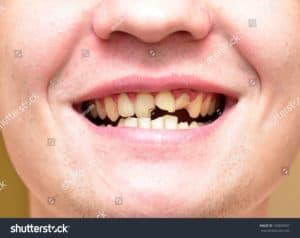 Close up of broken and rotten teeth needing a dentist