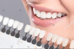dental crowns - beautiful smile