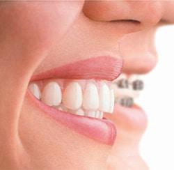 side by side, clear teeth braces and metal teeth braces