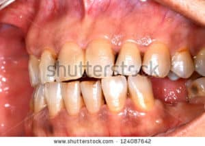 image of mouth cancer in a dental patient