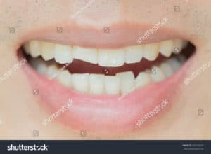 close up of a crooked smile that can be fixed with a trip to a dublin dentist