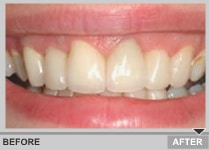 close up of tooth veneers from a dentis in dublin