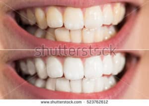 before and after shots of tooth whitening dublin