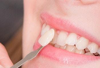 smiling white teeth