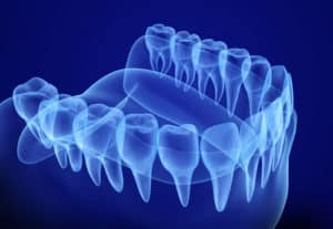 x-ray of gums and teeth