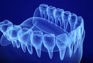 x-ray of teeth and gums