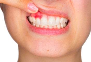 Gum Contouring & Teeth Reshaping | Portobello Dental