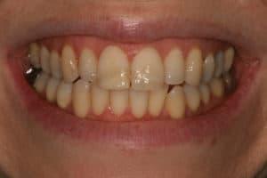 before dental bonding