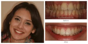 Before and After - Smile Gallery
