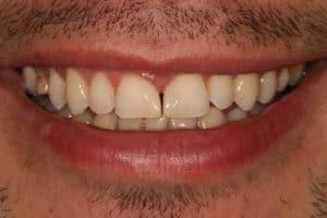 After bonding (dental)
