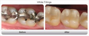 Before and After White Filling