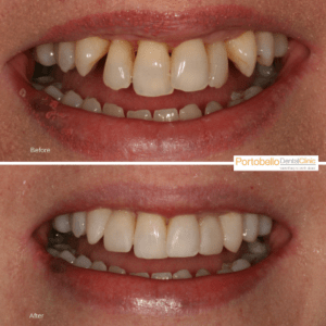 before and after (front teeth)